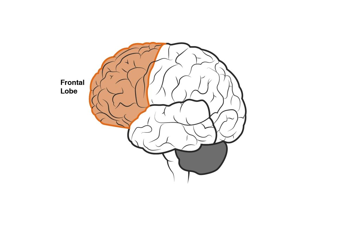 Brain diagram 2-02